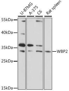 Signal Transduction Antibodies 2 Anti-WBP2 Antibody CAB16312