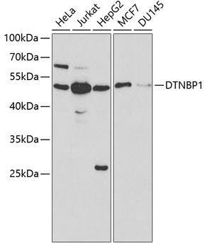 Signal Transduction Antibodies 2 Anti-DTNBP1 Antibody CAB1632