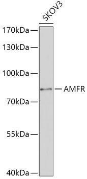 Signal Transduction Antibodies 2 Anti-AMFR Antibody CAB16347