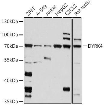 Signal Transduction Antibodies 2 Anti-DYRK4 Antibody CAB16460
