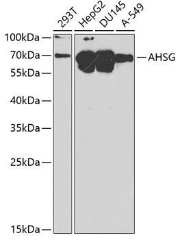 Signal Transduction Antibodies 2 Anti-AHSG Antibody CAB1647