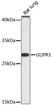 Cell Death Antibodies 1 Anti-GLIPR1 Antibody CAB16490
