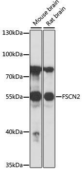 Signal Transduction Antibodies 2 Anti-FSCN2 Antibody CAB16508