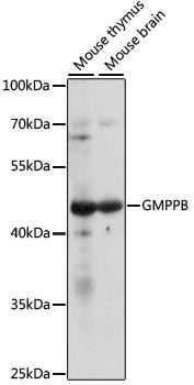 Signal Transduction Antibodies 2 Anti-GMPPB Antibody CAB16520