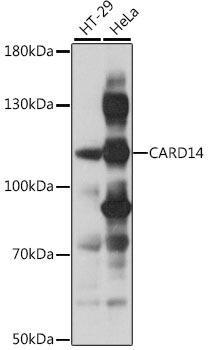 Cell Death Antibodies 1 Anti-CARD14 Antibody CAB16569