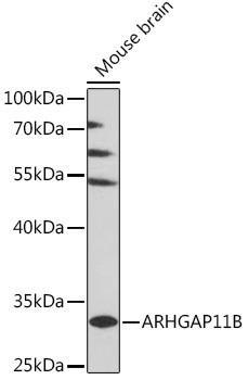 Signal Transduction Antibodies 2 Anti-ARHGAP11B Antibody CAB16587