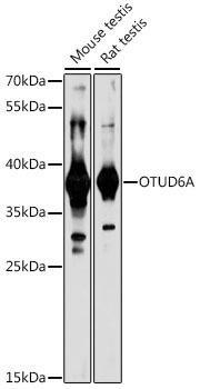 Signal Transduction Antibodies 2 Anti-OTUD6A Antibody CAB16628