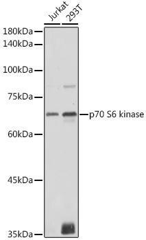 Cell Death Antibodies 1 Anti-p70 S6 kinase Antibody CAB16658