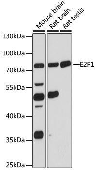 Cell Death Antibodies 1 Anti-E2F1 Antibody CAB16720