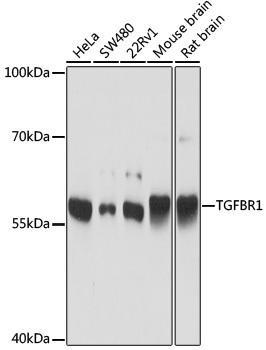Cell Death Antibodies 1 Anti-TGFBR1 Antibody CAB16983