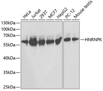 Immunology Antibodies 2 Anti-HNRNPK Antibody CAB1701