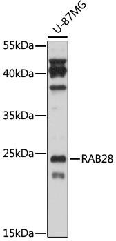 Signal Transduction Antibodies 2 Anti-RAB28 Antibody CAB17368
