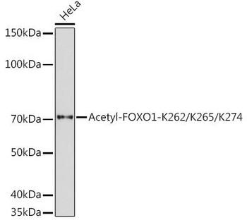 Cell Death Antibodies 1 Anti-Acetyl-FOXO1-K262/K265/K274 Antibody CAB17406