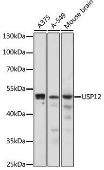 Signal Transduction Antibodies 2 Anti-USP12 Antibody CAB17862