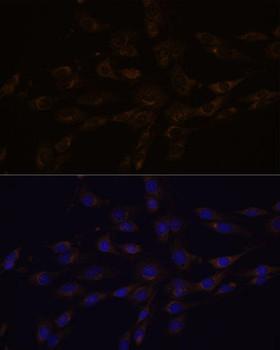 Signal Transduction Antibodies 2 Anti-RGS4 Antibody CAB1787