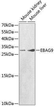 Cell Death Antibodies 1 Anti-EBAG9 Antibody CAB1935