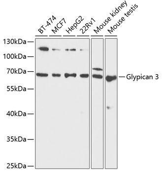 Cell Biology Antibodies 8 Anti-Glypican 3 Antibody CAB1946