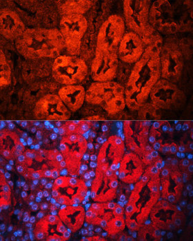 Cell Death Antibodies 1 Anti-LCN2 Antibody CAB2092
