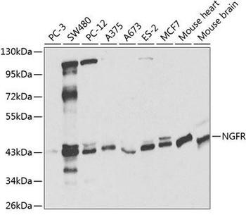 Cell Death Antibodies 1 Anti-NGFR Antibody CAB2097
