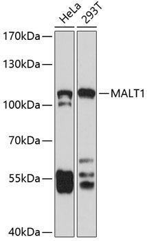 Signal Transduction Antibodies 2 Anti-MALT1 Antibody CAB2144