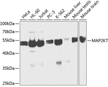 Cell Death Antibodies 1 Anti-MAP2K7 Antibody CAB2186