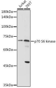 Cell Death Antibodies 1 Anti-p70 S6 kinase Antibody CAB2190