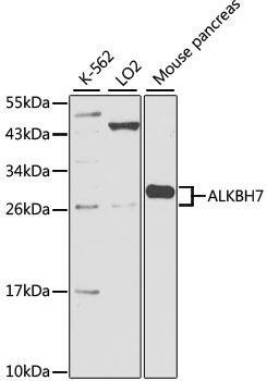 Cell Death Antibodies 1 Anti-ALKBH7 Antibody CAB2331