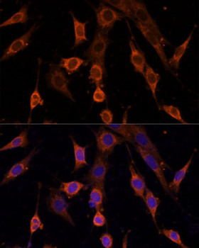 Cell Death Antibodies 1 Anti-PDCD4 Antibody CAB2420
