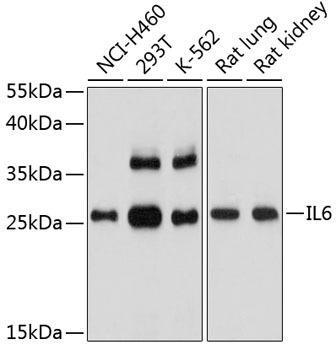 Immunology Antibodies 2 Anti-IL-6 Antibody CAB2447