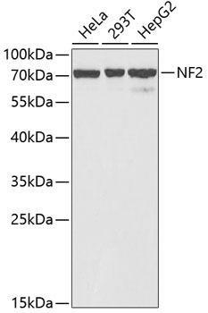 Cell Biology Antibodies 8 Anti-NF2 Antibody CAB2456