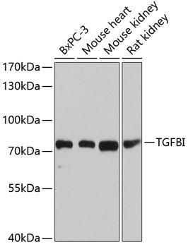 Cell Biology Antibodies 8 Anti-TGFBI Antibody CAB2561