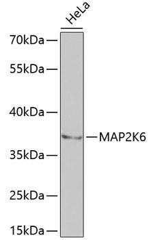 Cell Death Antibodies 1 Anti-MAP2K6 Antibody CAB2575