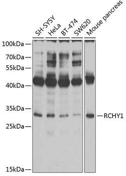 Signal Transduction Antibodies 2 Anti-RCHY1 Antibody CAB2789