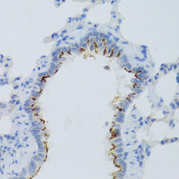 Cell Biology Antibodies 8 Anti-PTGER2 Antibody CAB2914