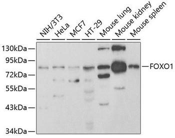 Cell Death Antibodies 1 Anti-FOXO1 Antibody CAB2934