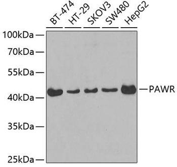 Cell Death Antibodies 1 Anti-PAWR Antibody CAB3063
