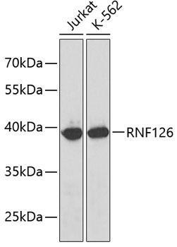 Signal Transduction Antibodies 2 Anti-RNF126 Antibody CAB3081