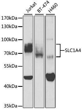 Signal Transduction Antibodies 2 Anti-SLC1A4 Antibody CAB3084