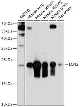 Cell Death Antibodies 1 Anti-LCN2 Antibody CAB3176