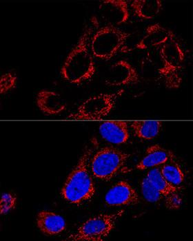 Signal Transduction Antibodies 2 Anti-TOMM40 Antibody CAB3213