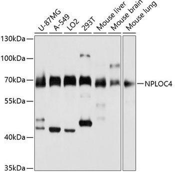 Signal Transduction Antibodies 2 Anti-NPLOC4 Antibody CAB3256
