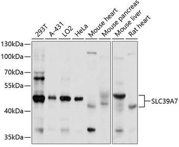 Signal Transduction Antibodies 2 Anti-SLC39A7 Antibody CAB3343