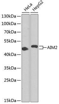 Cell Death Antibodies 1 Anti-AIM2 Antibody CAB3356