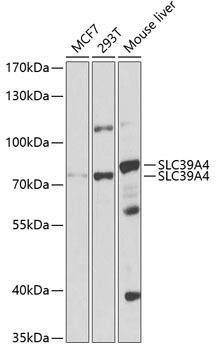 Signal Transduction Antibodies 2 Anti-SLC39A4 Antibody CAB3454
