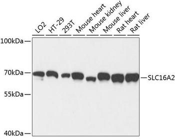 Signal Transduction Antibodies 2 Anti-SLC16A2 Antibody CAB3636