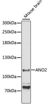 Signal Transduction Antibodies 2 Anti-ANO2 Antibody CAB3684
