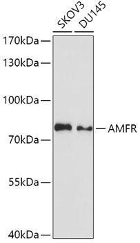 Signal Transduction Antibodies 2 Anti-AMFR Antibody CAB3731