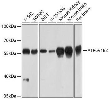 Signal Transduction Antibodies 2 Anti-ATP6V1B2 Antibody CAB3754