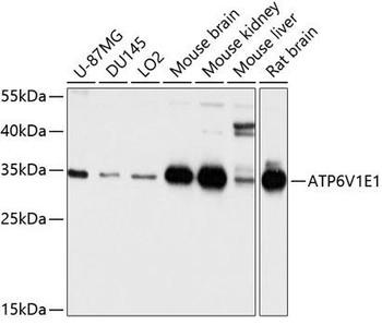 Signal Transduction Antibodies 2 Anti-ATP6V1E1 Antibody CAB3756