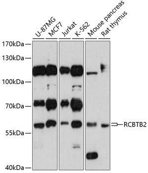 Signal Transduction Antibodies 2 Anti-RCBTB2 Antibody CAB3785